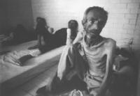 Campo di concentramento serbo di Tronopolje, vicino a Banja Luka. Prigioniero di guerra mussulmano ridotto ad uno scheletro. (BN) ottima, importante,