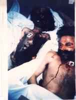 Immagini di corpi massacrati di abitanti albanesi  del Kosovo. Altre digitali.