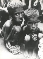 due mambini malnutriti rannicchiati guardano nell'obiettivo  (BN)